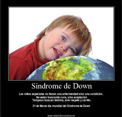 21 de Marzo, día mundial del Síndrome de Down.  La Dulce ...